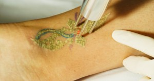 laser tattoo removal in des moines, iowa