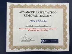 Tattoo Removal Place Des Moines